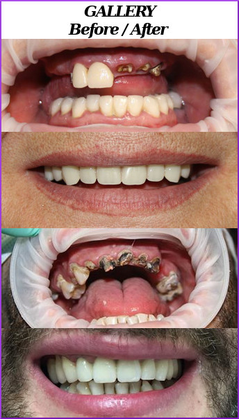 Pictures of teeth before and after treatment,leading to gallery
