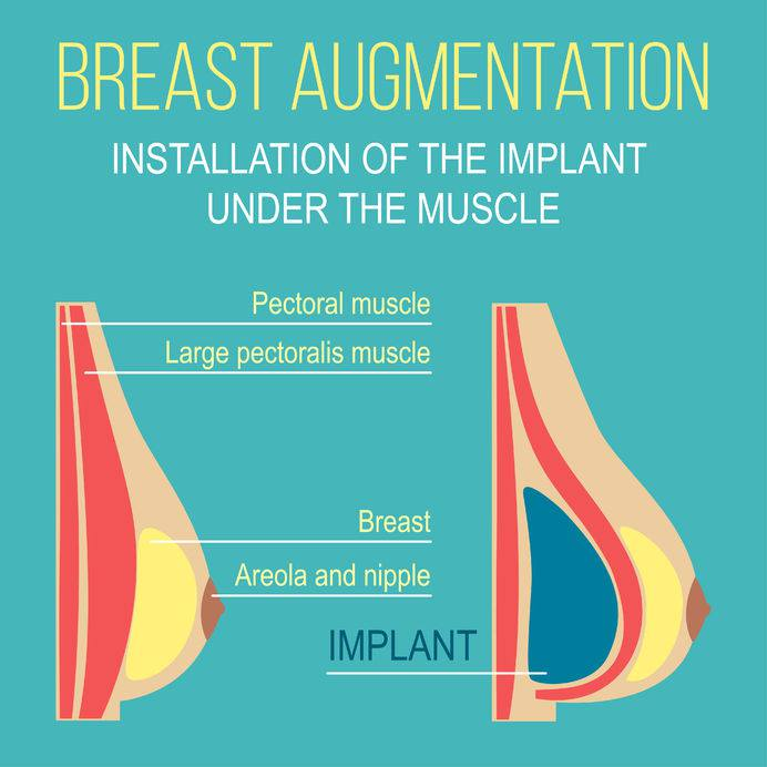 We present a graphic of under muscle breast enlargement technique