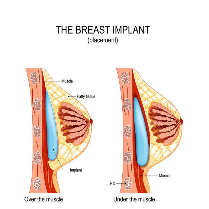 We present a graphic of subglandular breast enlargement technique