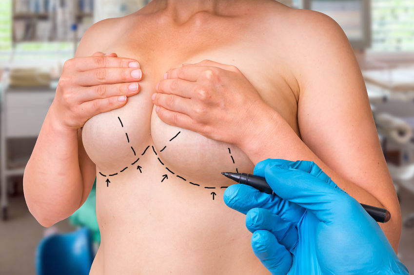 Mastopexy Without Implants In Poland